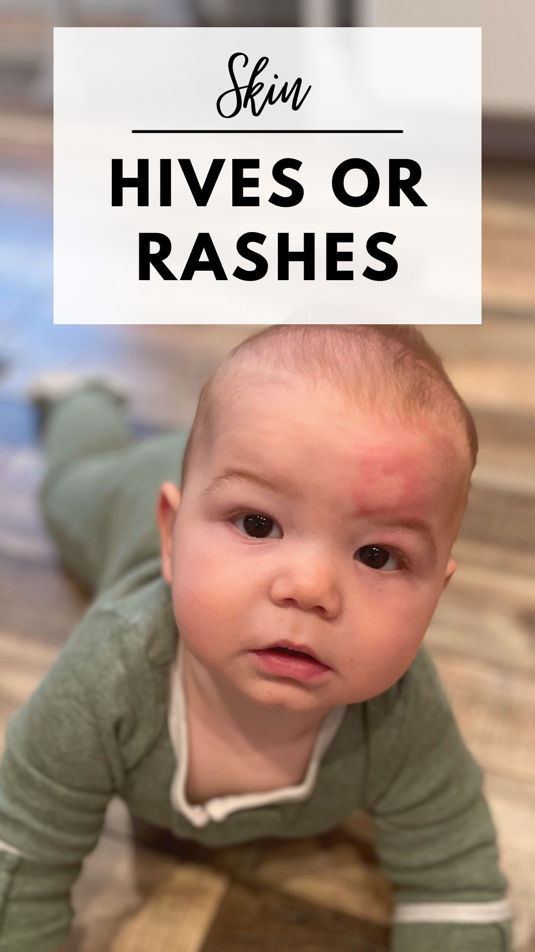 Section separator discussing hives or rashes for food allergies with baby face.